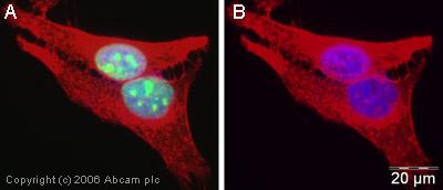 Immunocytochemistry/ Immunofluorescence - RECQ1 antibody (ab22830)