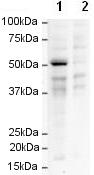 Western blot - FOXP3 antibody [mAbcam 22510] (ab22831)