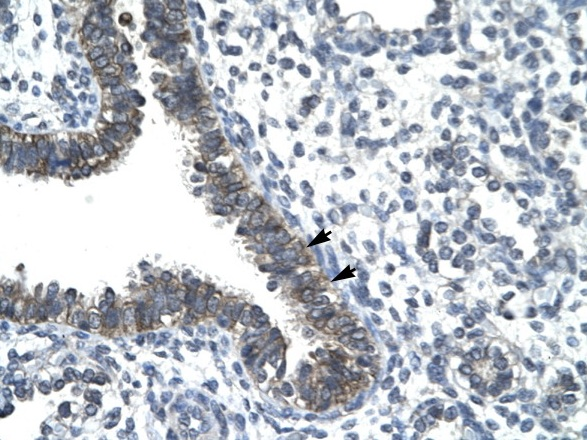 Immunohistochemistry (Formalin/PFA-fixed paraffin-embedded sections) - Nocturnin antibody (ab22850)