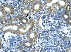 Immunohistochemistry (Formalin-fixed paraffin-embedded sections) - Smac antibody (ab23450)