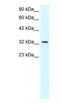 Western blot - SNAP45 antibody (ab23467)