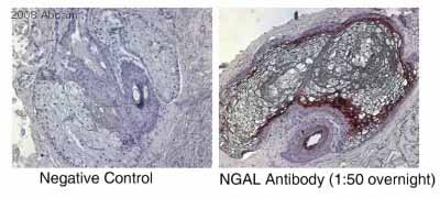 Immunohistochemistry (Formalin/PFA-fixed paraffin-embedded sections) - Anti-Lipocalin-2 / NGAL antibody [5G5] (ab23477)
