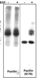 Western blot - Paxillin antibody [M107] (ab23510)