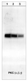 Western blot - PKC (unmodified T638 + S657 + Y658 + S661 + Y662) antibody [M110] (ab23511)