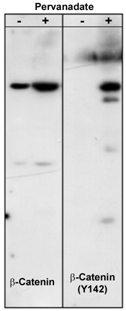 Western blot - beta Catenin antibody (ab23512)