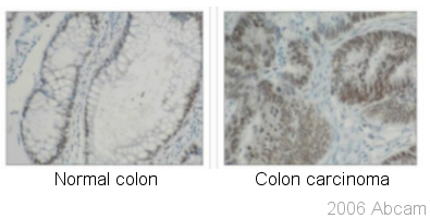 Immunohistochemistry (Formalin/PFA-fixed paraffin-embedded sections) - hnRNP K antibody [F45 P9 C7] (ab23644)
