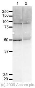 Western blot - FOXO3A antibody (ab23683)
