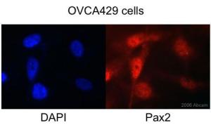Immunocytochemistry/ Immunofluorescence - Pax2 antibody (ab23799)