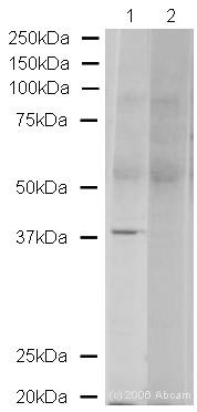 Western blot - VPS26 antibody (ab23892)