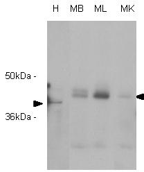 Western blot - RASSF1a antibody [3F3] (ab23950)