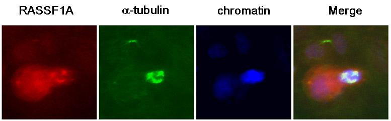 Immunocytochemistry/ Immunofluorescence - RASSF1a antibody [3F3] (ab23950)