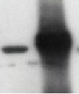 Western blot - Tau antibody (ab24230)