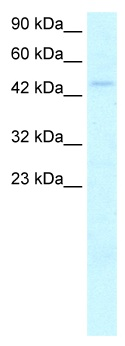 Western blot - n-Myc antibody (ab24339)