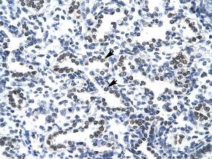 Immunohistochemistry (Formalin/PFA-fixed paraffin-embedded sections) - Anti-Nucleophosmin antibody (ab24412)