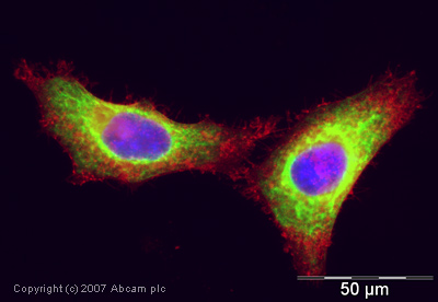 Immunocytochemistry/ Immunofluorescence - Cytokeratin 18 antibody (ab24561)