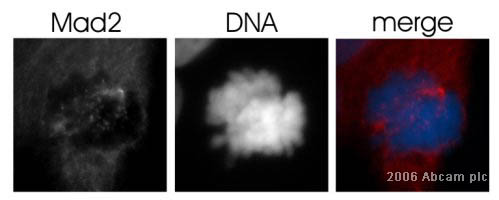 Immunocytochemistry/ Immunofluorescence - MAD2 antibody (ab24588)
