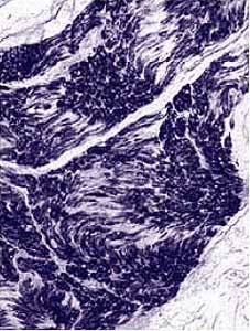 Immunohistochemistry (Formalin/PFA-fixed paraffin-embedded sections) - NSE antibody [NSE-P1] (ab24709)