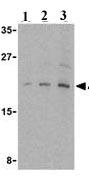 Western blot - eIF4EBP1 antibody (ab25872)