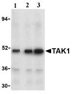 Western blot - TAK1 antibody (ab25879)