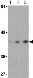 Western blot - beta Actin antibody (ab25894)