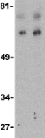 Western blot - Bcl rambo antibody (ab25895)