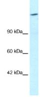 Western blot - Retinoblastoma binding protein 1 antibody (ab25913)