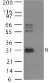 Western blot - Avian Influenza Nucleoprotein antibody (ab25921)