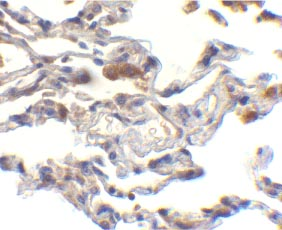 Immunohistochemistry (Formalin/PFA-fixed paraffin-embedded sections) - cIAP1 antibody (ab25939)