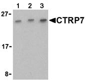 Western blot - CTRP7 antibody (ab25947)
