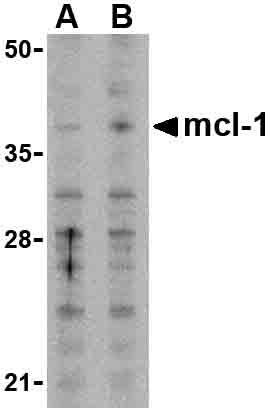 Western blot - MCL1 antibody (ab25956)