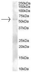 Western blot - TZFP antibody (ab26066)