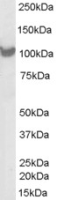 Western blot - Proteasome 26S S2 antibody (ab26078)