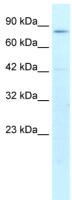 Western blot - ATF6 beta antibody (ab26085)