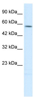 Western blot - TPH2 antibody (ab26092)