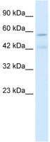 Western blot - Nicotinic Acetylcholine Receptor alpha 5 antibody (ab26099)