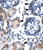 Immunohistochemistry (Formalin/PFA-fixed paraffin-embedded sections) - Anti-GFI1B antibody (ab26132)