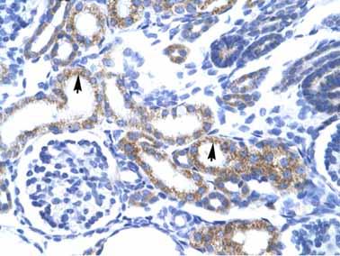 Immunohistochemistry (Paraffin-embedded sections) - ZA20D3 antibody (ab26136)