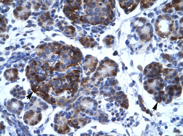 Immunohistochemistry (Paraffin-embedded sections) - TFIISH antibody (ab26141)