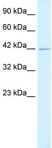 Western blot - Heat Shock Factor 2 Binding Protein antibody (ab26149)