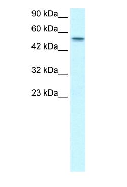 Western blot - RUNX1T1 antibody (ab26161)