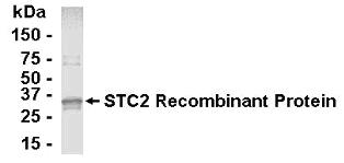 Western blot - Stanniocalcin 2 antibody (ab26184)