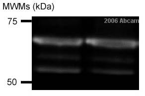 Western blot - SNX2 antibody (ab26201)