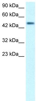 Western blot - LOC153222 antibody (ab26262)