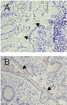 Immunohistochemistry (Frozen sections) - CEACAM1 antibody [GM8G5] (ab26279)