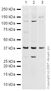 Western blot - DNA Polymerase beta antibody (ab26343)