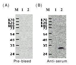Western blot - White spot syndrome virus VP28 antibody (ab26935)