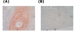 Immunohistochemistry - Anti-M6PR (cation dependent) antibody (ab26938)