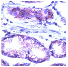 Immunohistochemistry (Formalin/PFA-fixed paraffin-embedded sections) - Anti-Fas antibody, prediluted (ab27091)