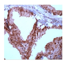 Immunohistochemistry (Formalin/PFA-fixed paraffin-embedded sections) - Anti-NF-kB p65 antibody, prediluted (ab27182)
