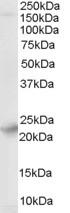 Western blot - Synaptogyrin 4 antibody (ab27480)